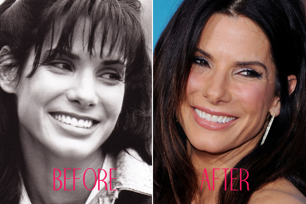Sandra Bullock Nose Job