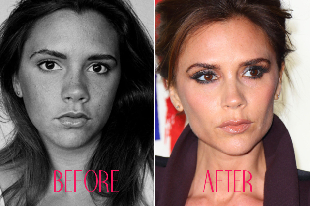 Victoria Beckham Nose Job