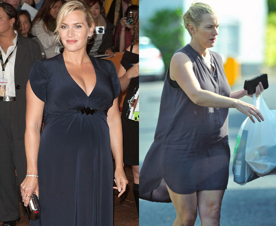 Kate Winslet On Stretch Marks