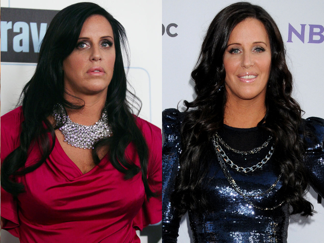 Patti Stanger Breast Reduction
