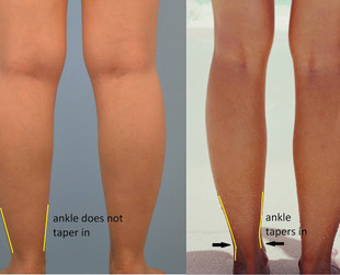 Thick ankles don't really go with cute stilettos. Worried that you're developing cankles? Find out what you can do about it, from dieting to ankle liposuction..