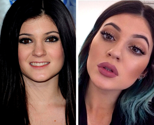 If you're considering adding some plumpness to your pout, learn more about lip fillers, and consider the benefits and side-effects of this cosmetic treatment.