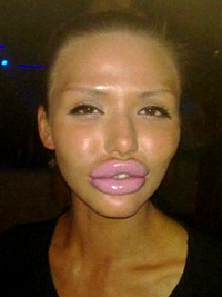 Duck Lips Lip Injections