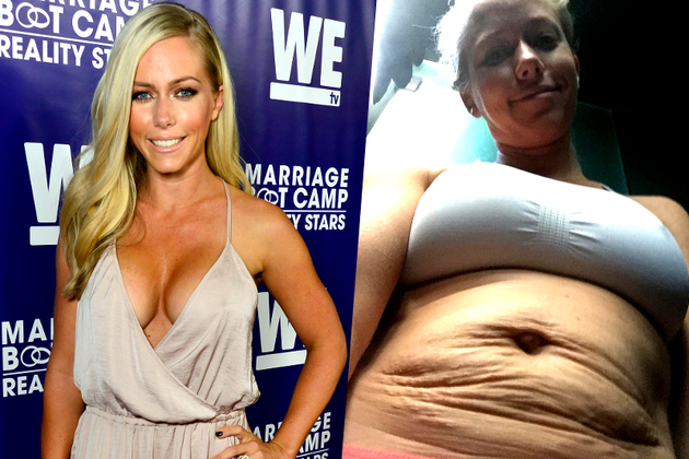 Kendra Wilkinson Reveals Post Baby Stretch Marks